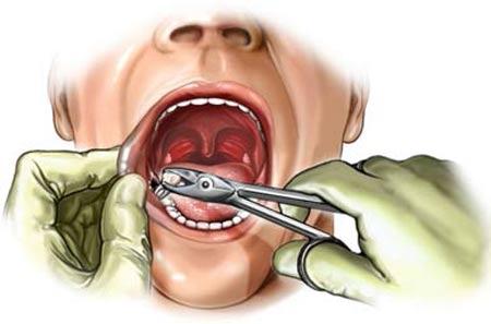 مصرف آنتیبیوتیک بعد از کشیدن دندان