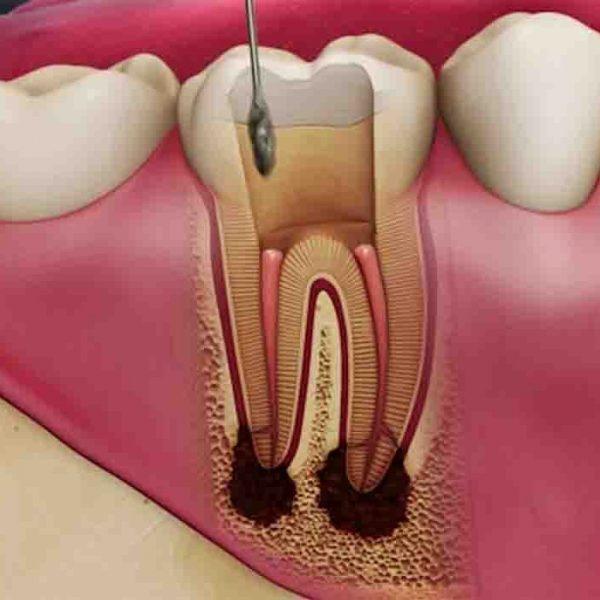 علت شکستن دندان عصبکشی شده