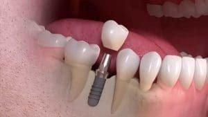 کاشت دندان در مشهد