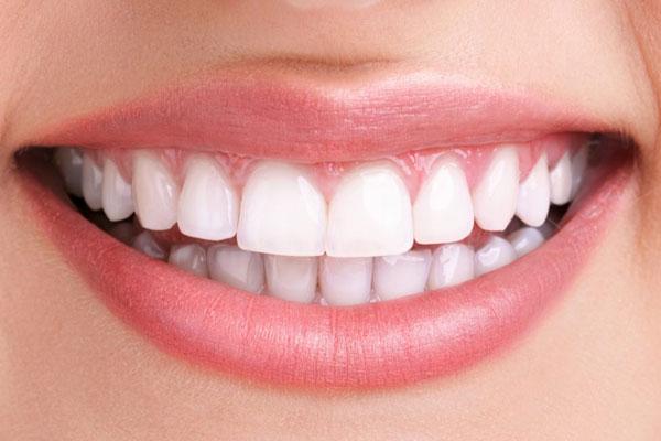 دندان زیبایی